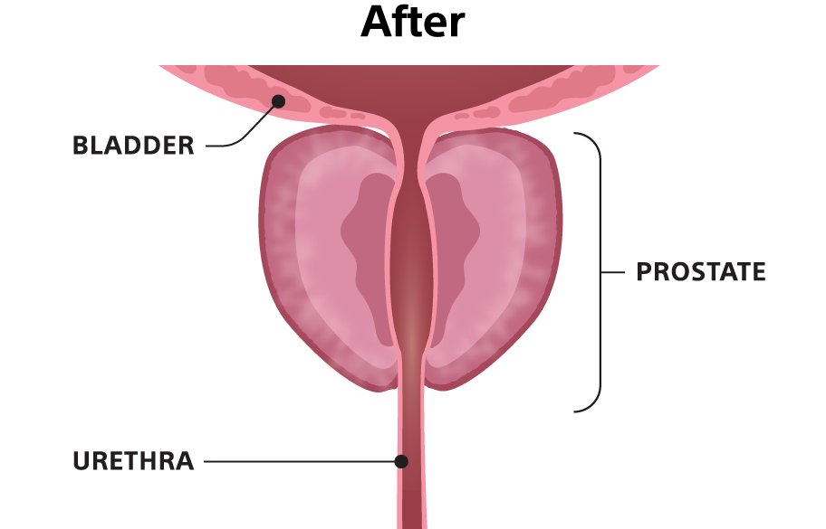 """After"" illustration showing the urethra unobstructed."