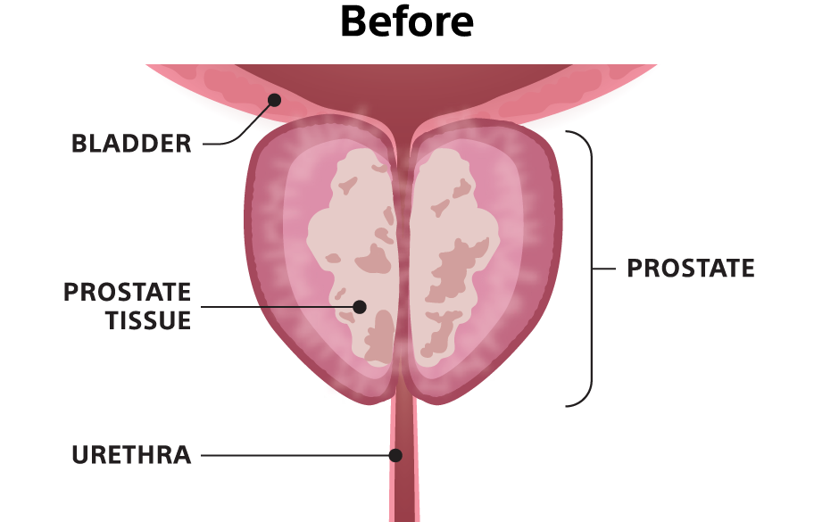"""""""Before"""" illustration showing prostate tissue that is obstructing the urethra."""