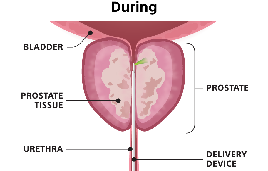 """""""During"""" illustration showing the delivery device inserted into the urethra."""